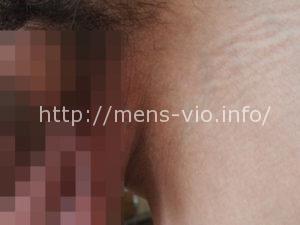 mensvio_8